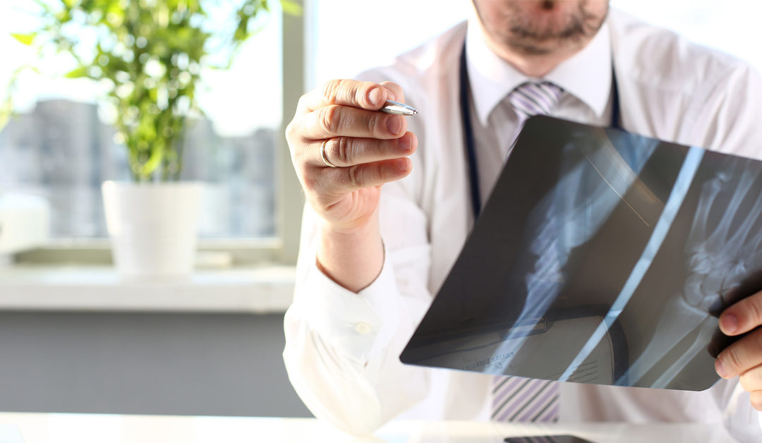The Beginning signs of Osteoporosis